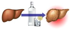 алкоголь и печень