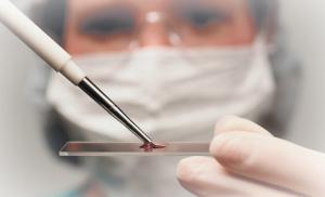 анализ крови на содержание гашиша