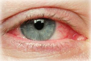 красные глаза от курения гашиша