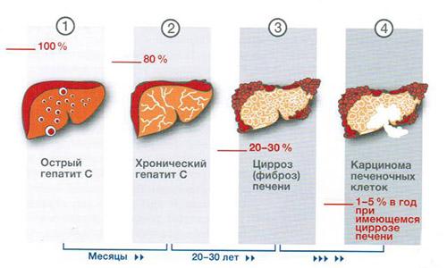 формы гепатита