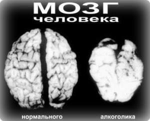 мозг здорового и алкоголика