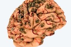 vliyanie-alkogolya-na-mozg